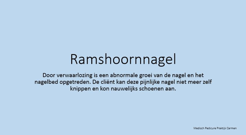 Ramshoornnagel